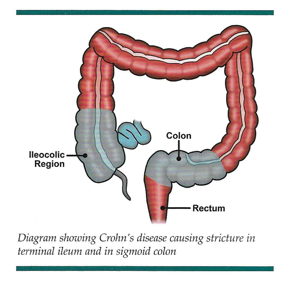Crohn's disease graphic